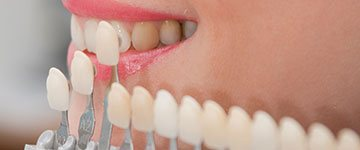 teeth-whitening-home-services